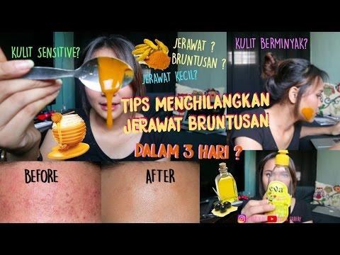 Video CARA MENGHILANGKAN JERAWAT KECIL/ BERUNTUSAN DALAM 3 HARI? | Dinda Shafay (Bahasa)