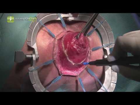 Operative Entfernung des Prostata-Adenom