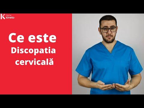 Tratament articular în tuapse