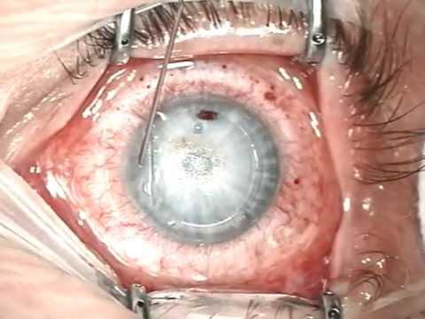 Die Säcke unter den Augen nach disporta zu entfernen