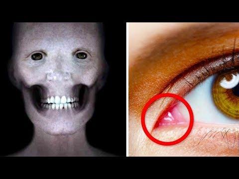 Pinworms bőr megnyilvánulásai