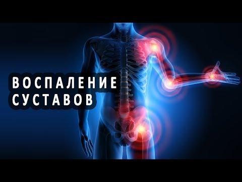 Причины и лечение воспаления суставов