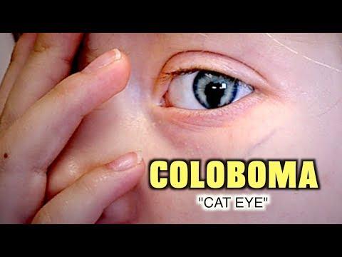 Gyermek szemészeti klinika