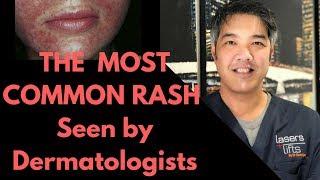How to treat Perioral Dermatitis- Dermatologist Explains