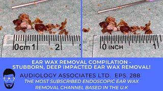 STUBBORN, DEEP EAR WAX REMOVAL - EP288