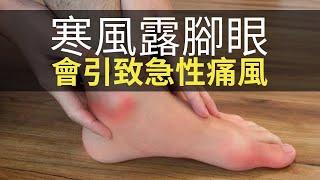 思浩話你知寒風下露腳眼會引致急性痛風!原來雪靴可以去上海街買?(大家真風騷)