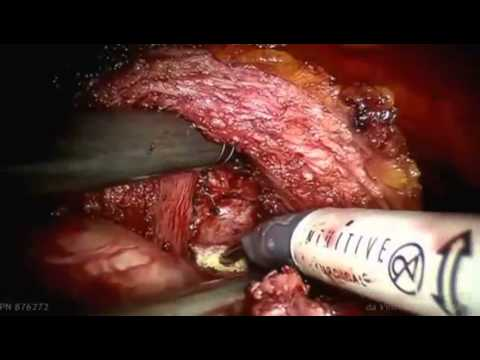 Simple Prostatectomy