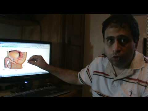 Análisis normal sobre la próstata
