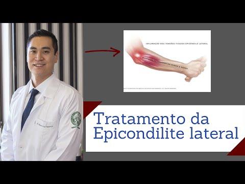 Fractură a articulației umărului cu tratament de deplasare