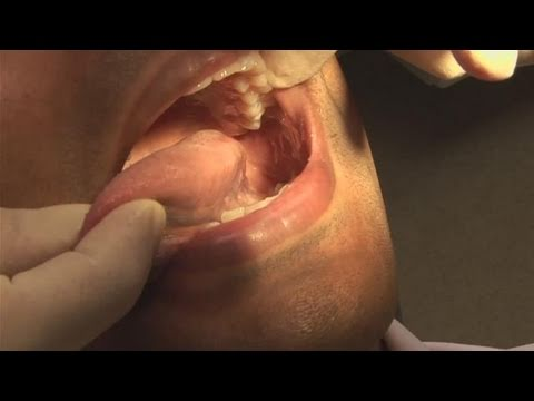 Toxine foie symptomes