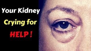 10 Signs Your Kidneys Are Crying For Help | Kidney Disease & Kidney Failure