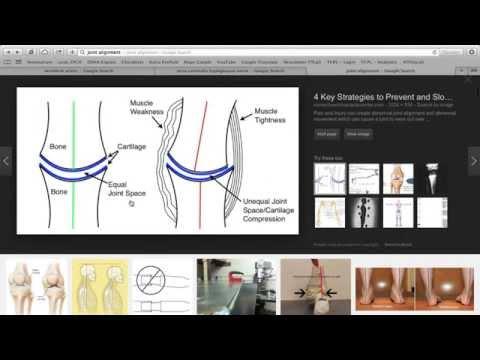 Przepuklina międzykręgowe kręgosłupa lędźwiowego