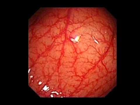 Intrakranielle Hypertension Behandlung diakarbom