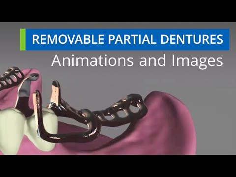 Removable Partial Dentures Animations & Images
