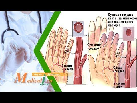 Болезнь Рейно. Причины, симптомы и лечение