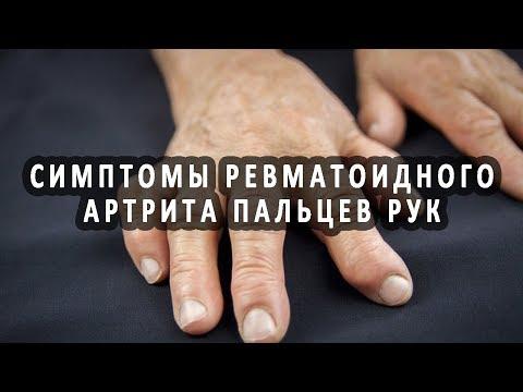Боль в суставе среднего пальца руки причины