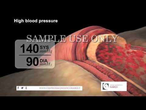 Con la quale la pressione del sangue è prodotto in volo