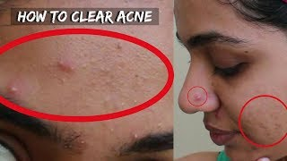 How to Get Rid of Pimples/ Acne + Marks in 3 Days | 3 Home Remedies