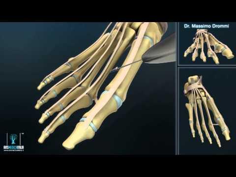 Gonfiore del trattamento articolazioni delle dita