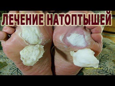 Die Behandlung von den Parasiten vom Hering