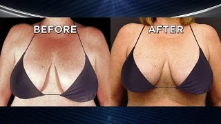Liposuction for Smaller and Perkier Breasts?