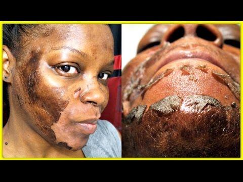 Beauty treatment mula sa mga bakas ng acne sa mukha