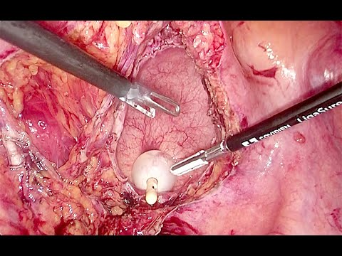 Laparoscopic Multivisceral Resection for Advanced cT4 Sigmoid Cancer