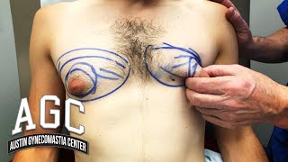 How To Get Rid Of Chest Fat - Before and After Gynecomastia Removal Surgery with Explanation