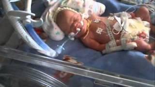 Premature baby born at 30 weeks