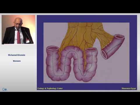 Die Wirkung auf die Prostata häufigen Sex