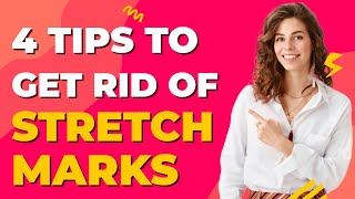 4 Tips to Get Rid of Stretch Marks - Dr Lucas Fustinoni Brazil