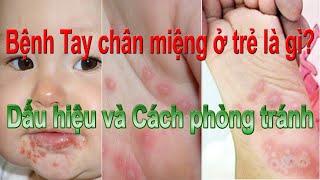 Bệnh Tay chân miệng ở trẻ là gì? Dấu hiệu và Cách phòng tránh