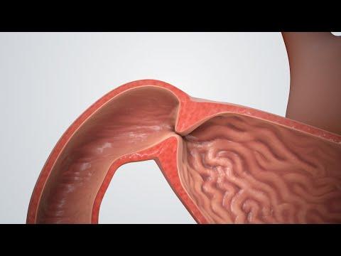 Pyloric Stenosis - Pediatrics - Medbullets Step 2/3