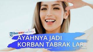 Ayah Jessica Iskandar Jadi Korban Tabrak Lari, Begini Kondisinya