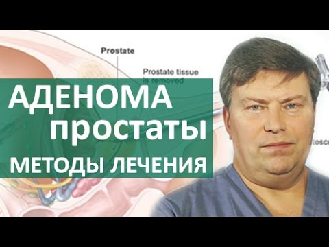 Лечение народными средствами от хронического простатита