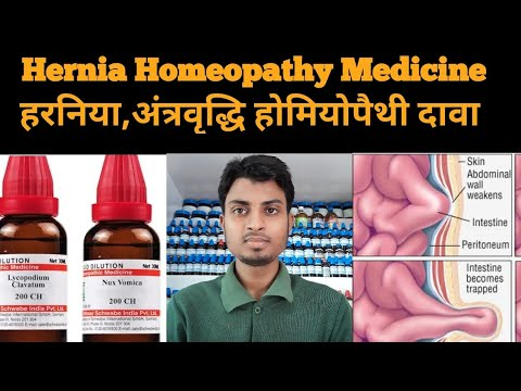 Download Hernia Homeopathic Medicine For Hernia Explian
