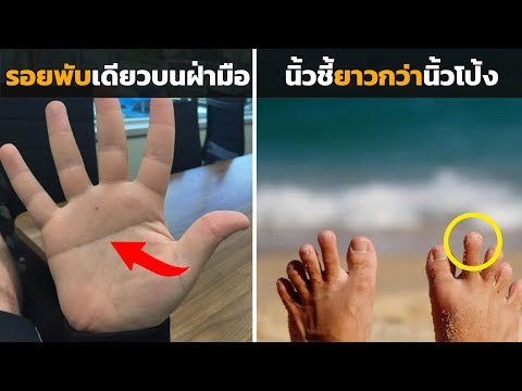 วิธีการลดกระดูกนิ้วหัวแม่มือ