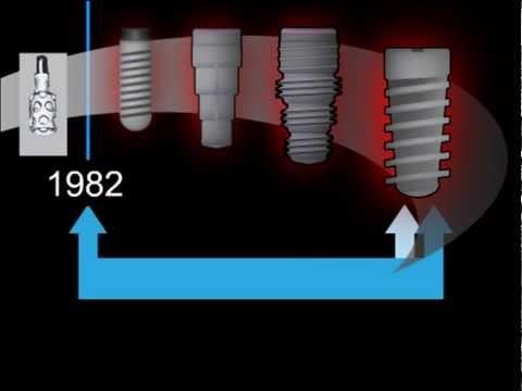 Имплантаты или протезы