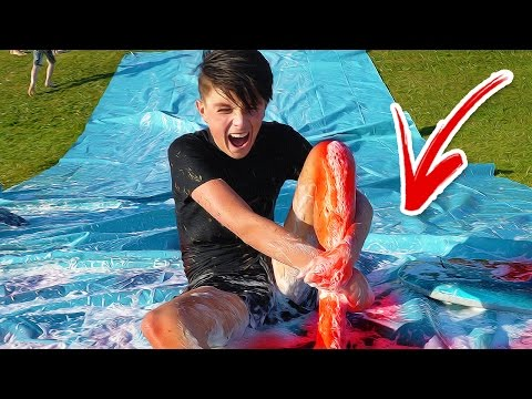 INJURED MY LEG!!! (SLIP N SLIDE ACCIDENT)