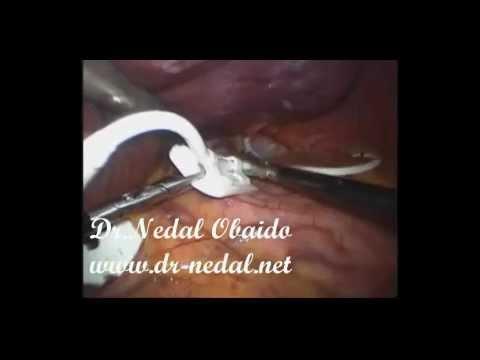 عملية حزام المعدة ( ربط المعدة )