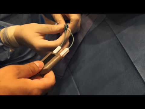Videos en Cardiología: Colocación de marcapasos