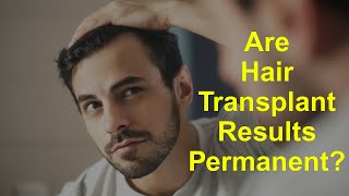 Are Hair Transplant Results Permanent?