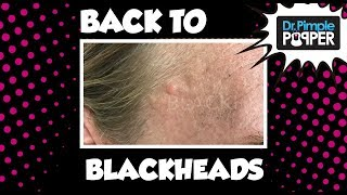 Back to Blackheads!