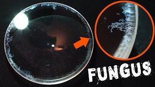 How to Remove Fungus from a Camera Lens FAST & EASY