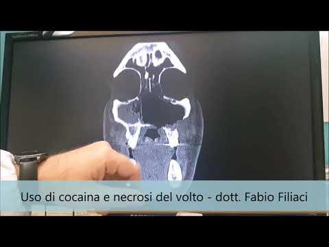 La terapia Esercizio nel osteocondrosi toracolombare