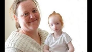 She Adopts Girl That Nobody Wants. 19 Years Later She Looks Completely Different.