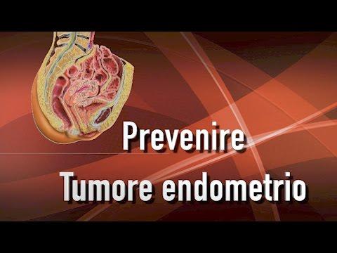Della prostata di grado 3 cancro sintomi