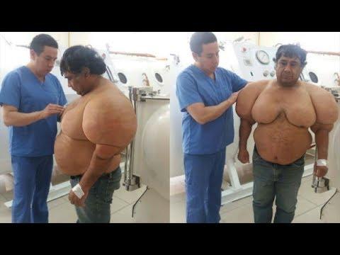 Лечении гипертонии у мужчин после 50 лет