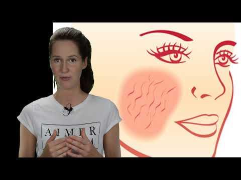 Rosazea Gesicht - wirksame Therapie!