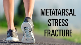 Metatarsal stress fracture: Mechanism of injury, signs, and treatment